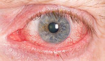 Skjermjobbing gir røde øyne