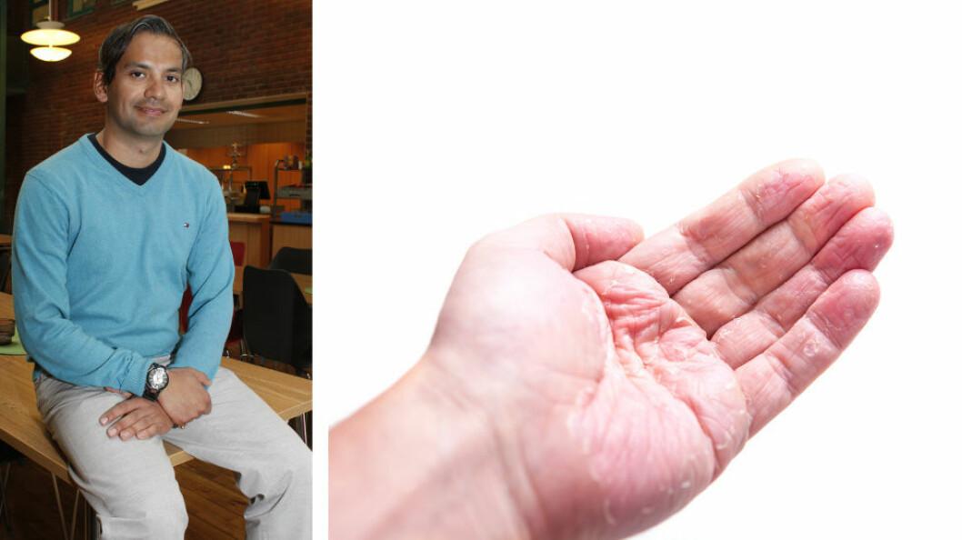Jose Hernán Alfonso ved Stami har forsket mye på hudsykdommer hos blant annet renholdere. Han er såkalt førsteforfatter i en ny internasjonal forskningsartikkel. (Ill.foto av håndeksem fra Colourbox).
