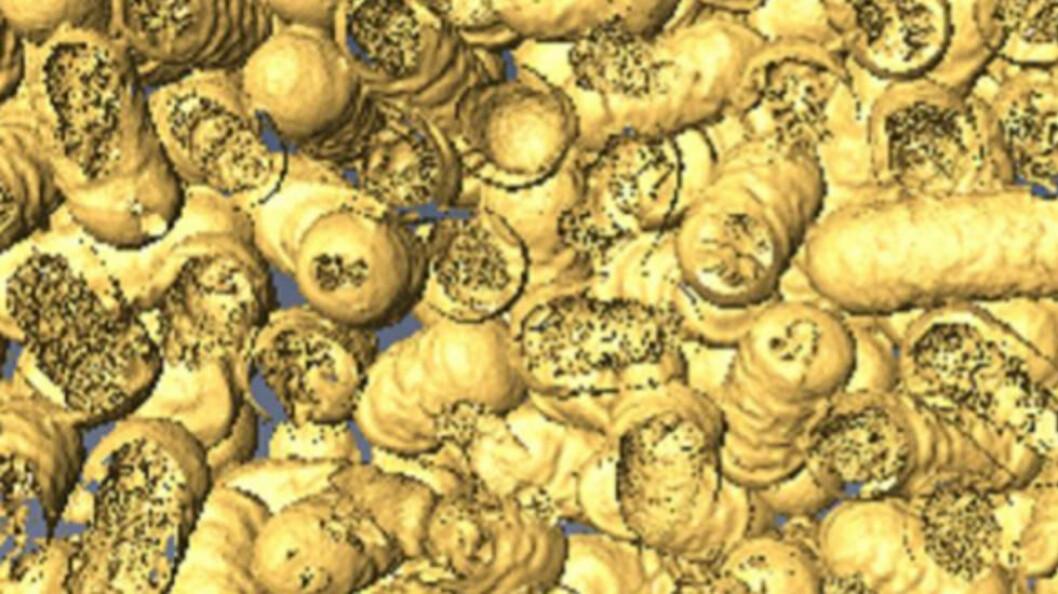 Døde bakterier som har blitt spist av nanoenzymer. (Foto: Dr Chaitali Dekiwadia/ RMIT universitet i Melbourne)