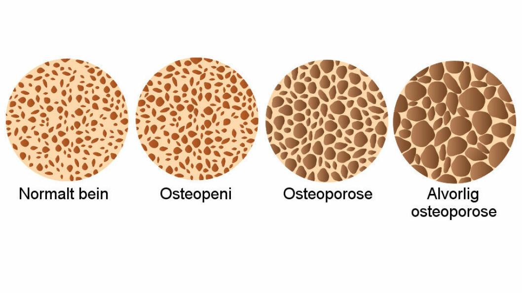 Ulike stadier av osteoporose. (Ill.: Colourbox)